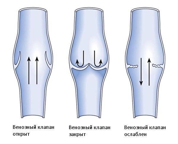 Берутливармиюсварикоцеле — все степени