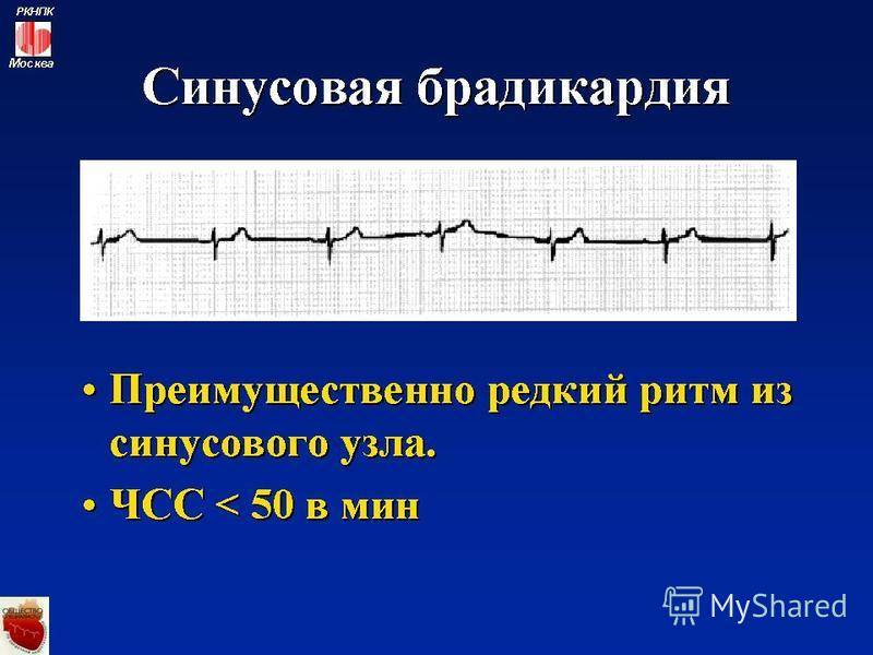Берут ли в армию с диагнозом брадикардия сердца
