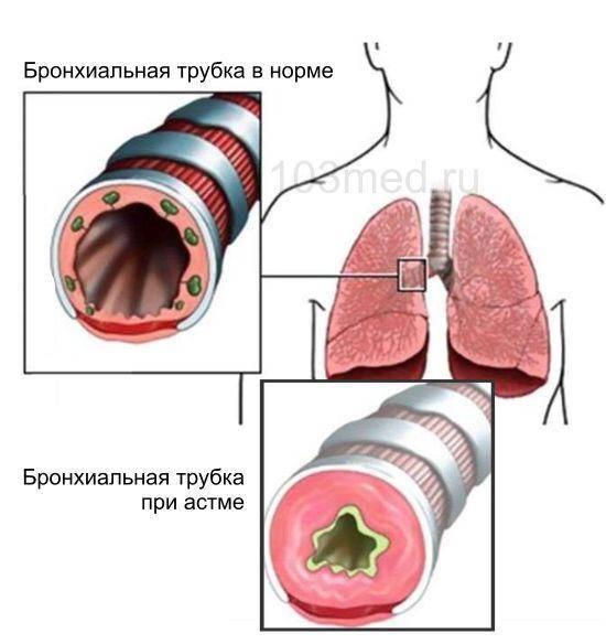 Как не попасть в армию с астмой или бронхитом