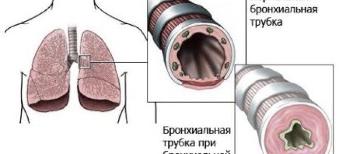 Берут ли сейчас в армию с бронхиальной астмой