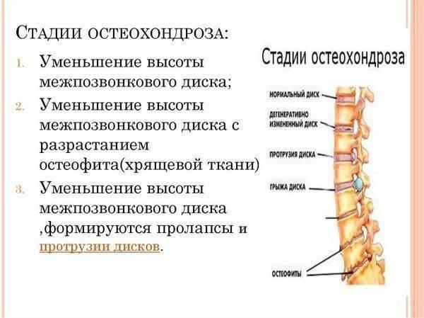 Берут ли в армию с остеохондрозом (1,2,3 степени)