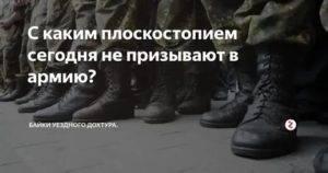 С каким плоскостопием не призывают в армию