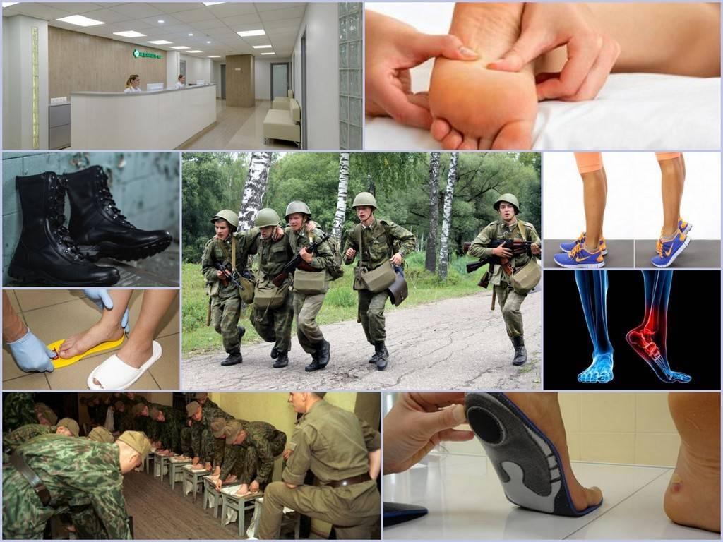 Берут ли в армию с плоскостопием 2 степени