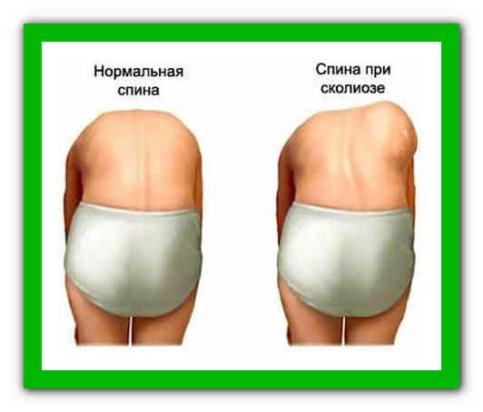 Берутливармиюсосколиозом1, 2, 3, 4 степени  и как подтвердить диагноз