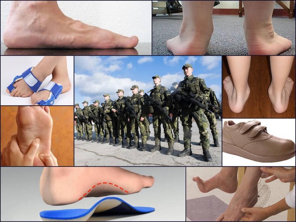 С каким плоскостопием не берут в армию и почему