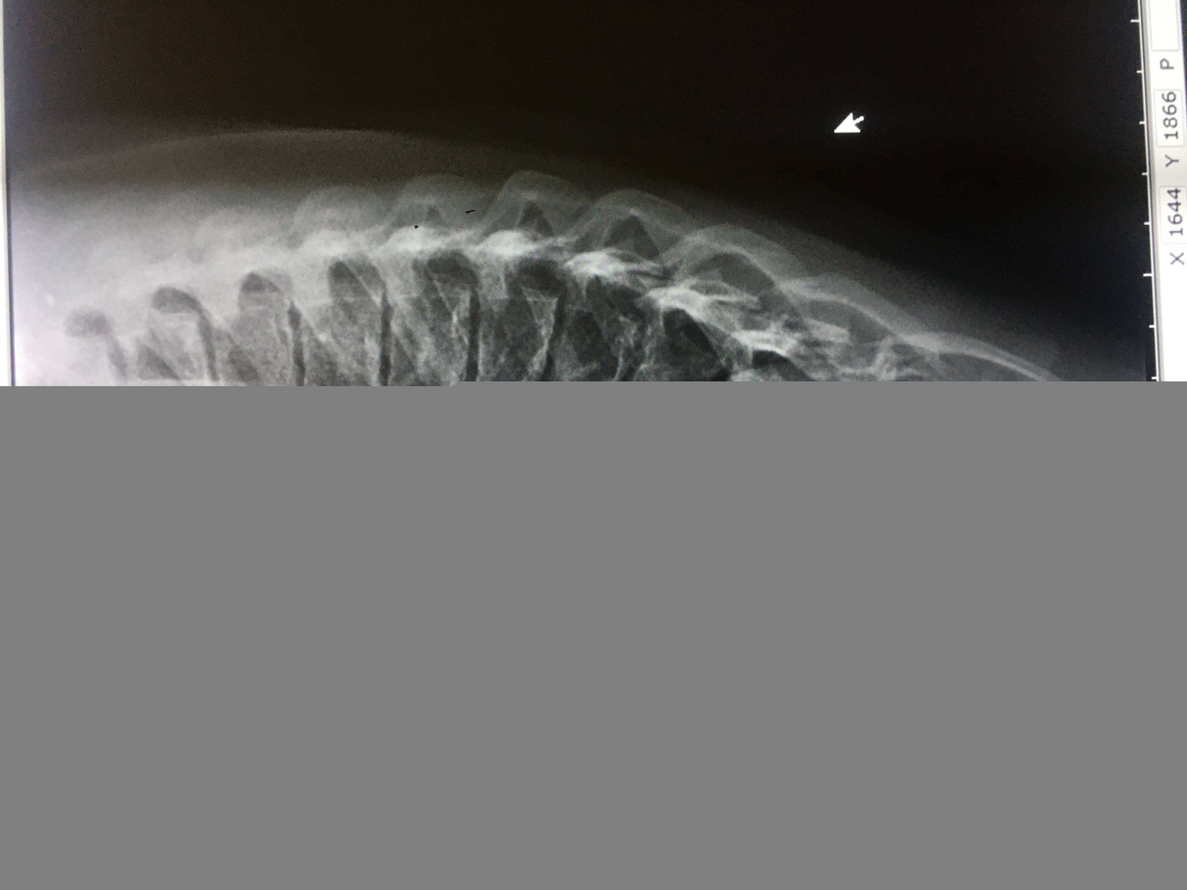 Берут ли в армию с болезнью Шейермана-Мау