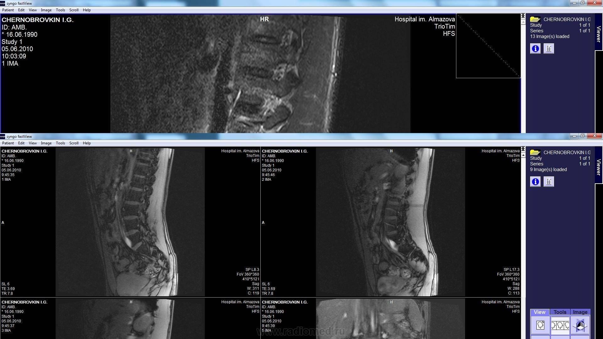 Берут ли в армию с диагнозом грыжа позвоночника