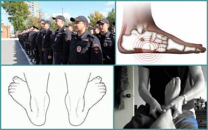 Берут ли в армию с плоскостопием 1, 2 или 3 степени, отзывы