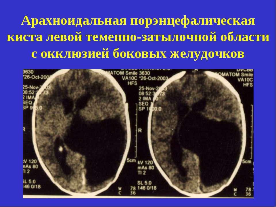 Берут ли в армию с гипертензией 1, 2 степени (киста, гидроцефалия)