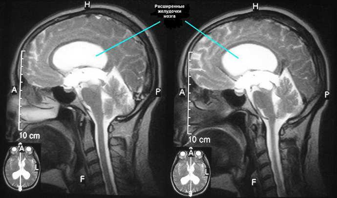 Берут ли в армию с диагнозом гидроцефалия