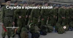 Возьмут ли в армию с геморроем