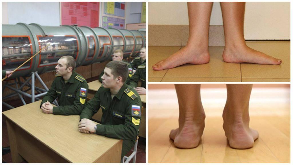 Болезнь Шляттера и служба в армии: совместимы ли?