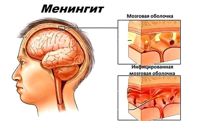 Призыв в армию при мигрени и менингите