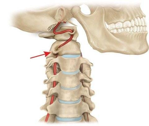 Условия освобождения от призыва при проблемах со спиной
