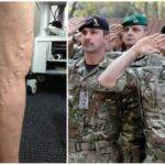 Берут ли в армию с варикозом (все варианты) и отзывы